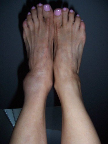 Swelling in the ankle is caused by deep vein thrombosis.