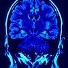 Symptoms of Sleep Related Seizures