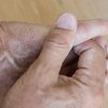 How to Relieve Nerve Pain in a Little Finger