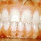 Cómo tratar la enfermedad de las encías con vinagre