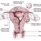 Recuperación de la cirugía de fibromas uterinos