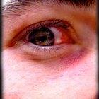 Cómo curar la conjuntivitis viral