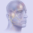Ejercicios para parálisis facial