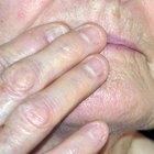 Cómo secar un herpes labial