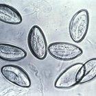 Tratamientos de venta libre contra gusanos parasitarios intestinales