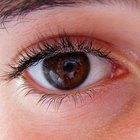 Qué hacer por un ojo rasguñado