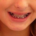 Cómo aliviar el dolor provocado por los aparatos de ortodoncia
