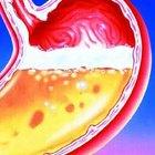 Cómo mejorar los niveles de ácido clorhídrico en el estómago