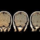 Cómo liberar la dopamina naturalmente