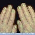 About Yellow Fingernails