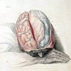 Dolores de cabeza y enfermedad tiroidea