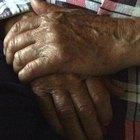 Los medios naturales para tratar la artritis con la comida