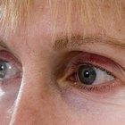 Causas de manchas oscuras en el centro de la visión