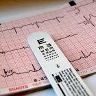 ¿Qué es la frecuencia cardiaca normal en reposo?