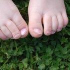 Problemas de la cutícula en los dedos del pie