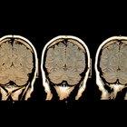 ¿Por qué necesito ver a un neurólogo para mi ojo?