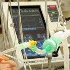 Efectos secundarios de los anestésicos intravenosos más utilizados