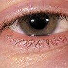Inflamación del párpado inferior del ojo