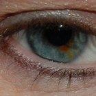 Puntos negros en la parte blanca del ojo