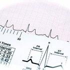 Información sobre un ataque al corazón y dolor en el oído