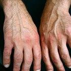 Suplementos antiinflamatorios para la artritis