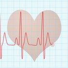 El latido del corazón normal para una mujer adulta