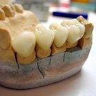 Cómo crear un falso diente de masilla