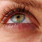 Piel hinchada y con picazón en el contorno de ojos