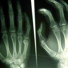 Acerca de la radiología forense