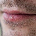 Tratamiento con vitamina C para el herpes zóster