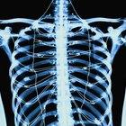Síntomas de quistes en huesos