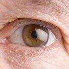 Los altos niveles de colesterol y la grasa bajo los ojos