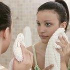Cómo tratar el acné hormonal