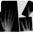 Cuidados de un dedo enyesado