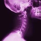 ¿Qué puede mostrar una radiografía de las cervicales?