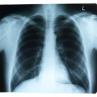 Alergias y crujido de pulmones mientras te ejercitas