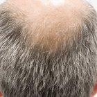 El pygeum y la pérdida de cabello