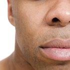Cómo desinflamar un labio hinchado que ha quedado muy rígido