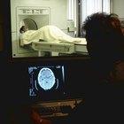 Los efectos de un accidente cerebrovascular en el hemisferio derecho
