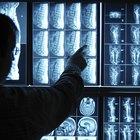 Las funciones del lóbulo temporal izquierdo