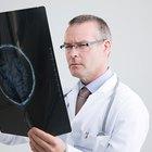 ¿Qué tratan los neurólogos?