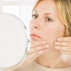 Skin Care for Mature Acne Prone Skin