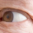 Home Remedies & Tips for Under-Eye Wrinkles