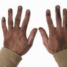 Cómo limpiar la piel sucia y agrietada de las manos