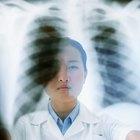 ¿Por qué sacan una tomografía del tórax después de sacar rayos X del pecho?