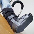 ¿Puedo caminar en la cinta si tengo una fractura por sobrecarga en el pie?