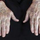 Age Spots & Hydroquinone