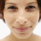 How to Fade Unwanted Freckles
