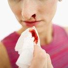 Qué causa sangrado en la nariz en las mujeres