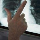 Diferencias entre pulmones sanos y enfermos
